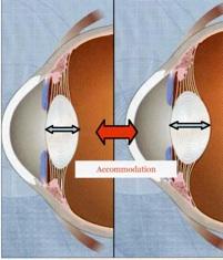 chirurgie oeil probtp