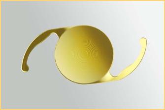 Cataracte implants multifocaux - A quel age peut on porter des lentilles de contact ...