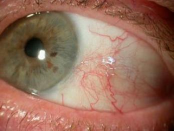 conjonctive oeil pique
