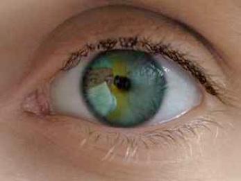 La pose d un implant intra-oculaire peut traiter la myopie,  l hypermétropie, l astigmatisme ou la presbytie dans deux situations très  différentes   be3c48f51d27